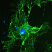 liver-regeneration